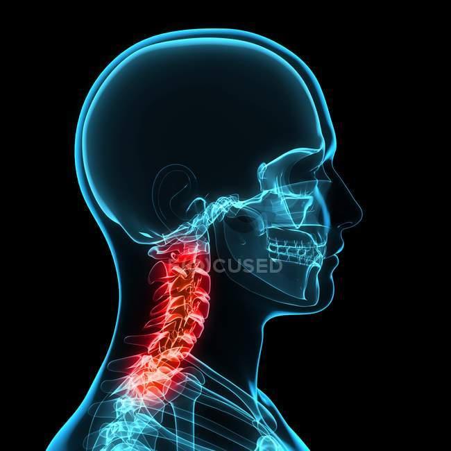 Dolor de cuello que afecta las vértebras cervicales - foto de stock
