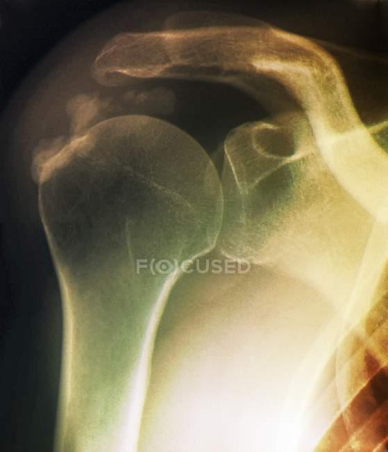 Tendinitis del hombro - foto de stock
