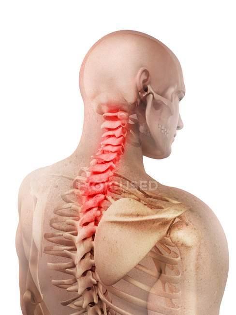Dolor en la sección cervical espinal - foto de stock
