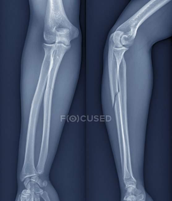 Raio-x do braço de um paciente de 20 ano de idade com um raio fraturado (osso do braço inferior). — Fotografia de Stock
