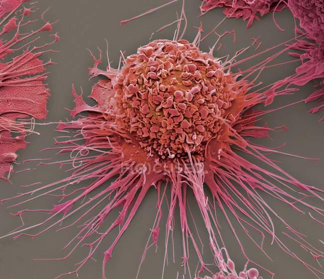 Aktivierte menschliche Makrophagen — Stockfoto