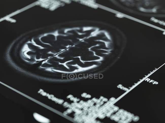 Serie von MRI-Gehirnscans — Stockfoto
