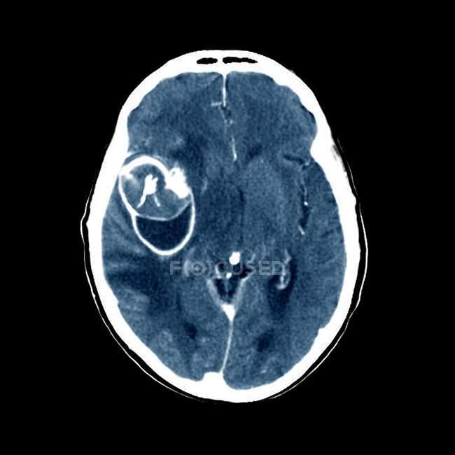 Мозг с аневризмой в средней мозговой артерии — стоковое фото