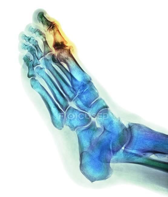 Deformación degenerativa del pie, rayos X - foto de stock