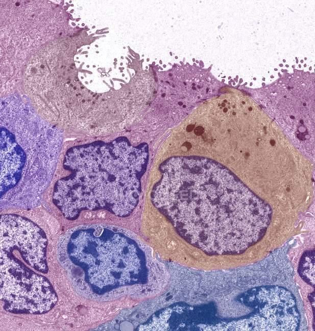 Carcinoma ductal da mama — Fotografia de Stock