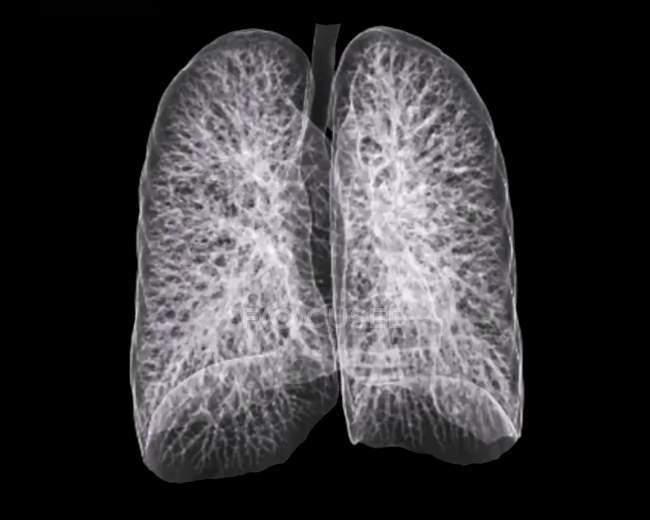 Pulmões saudáveis de um doente com 30 anos de idade — Fotografia de Stock