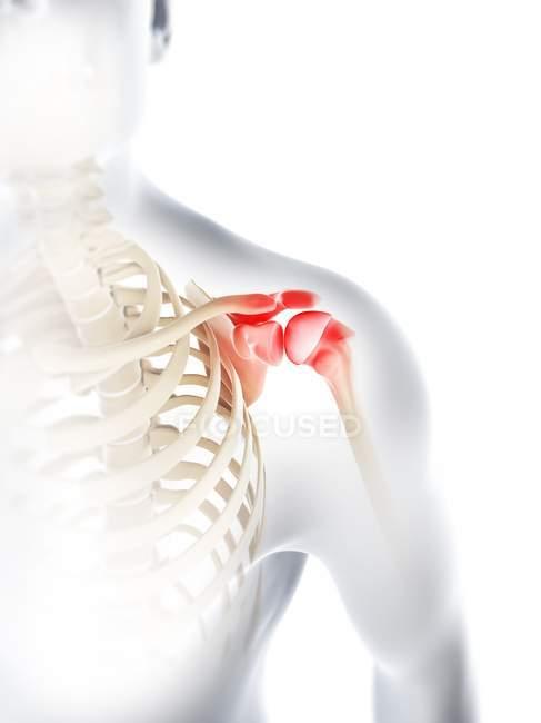 Dolor y molestias en las articulaciones del hombro - foto de stock