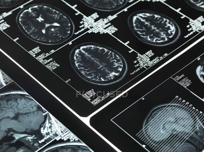 Sezione trasversale del cervello umano — Foto stock