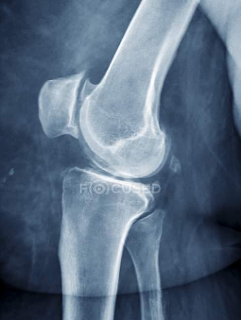 Knie von adipösen Patienten mit arthritis — Stockfoto