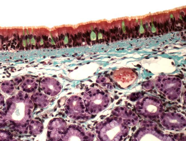 Structure of trachea, light micrograph. — Stock Photo