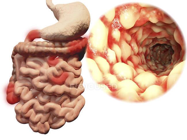 Enfermedad de Crohn, ilustración por ordenador . - foto de stock