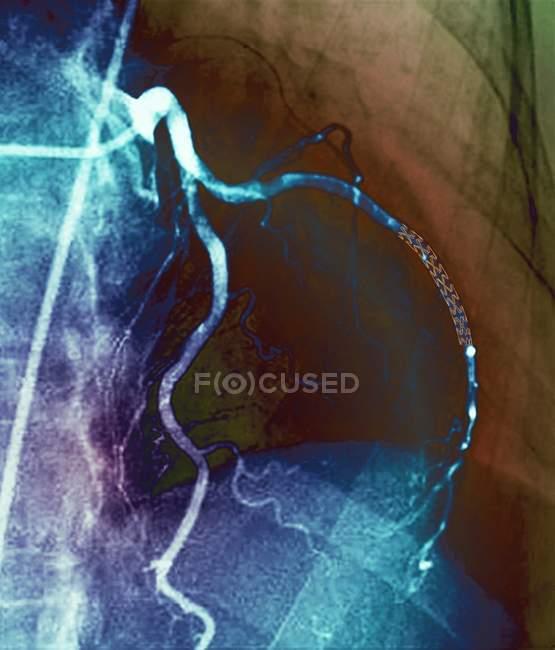 Кольорові angiogram (рентгенівських кровоносних судин) аорто-вінцеве 52-річного пацієнта. Артерії праворуч мав стента, розміщених у ній лікувати блокування. — стокове фото