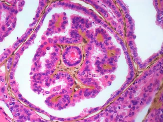 Аденокарциноми щитовидної залози — стокове фото