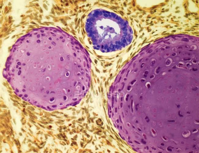 Cancro ai testicoli o teratoma — Foto stock