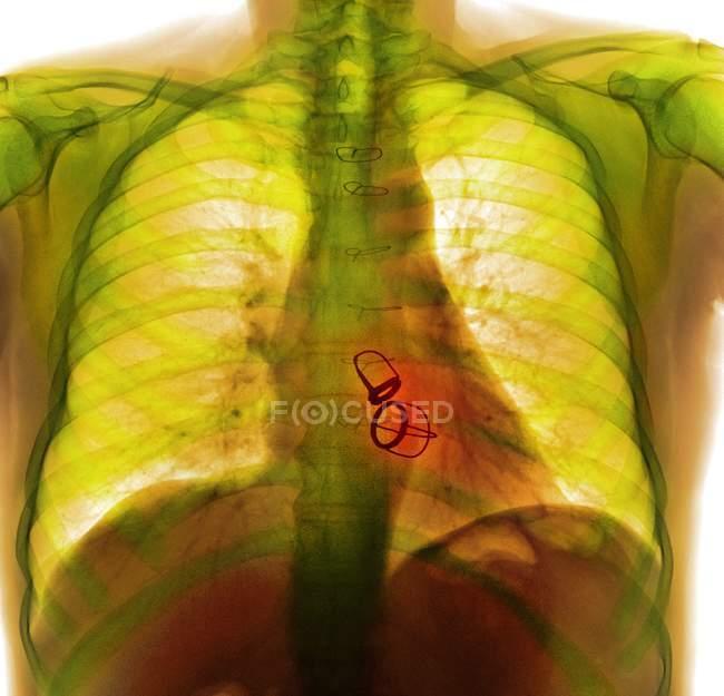 Протезування серцеві клапани — стокове фото