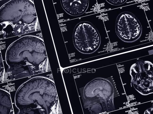 Querschnitt durch das menschliche Gehirn — Stockfoto