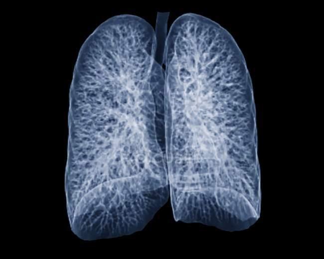 Pulmones sanos de un paciente de 30 años - foto de stock