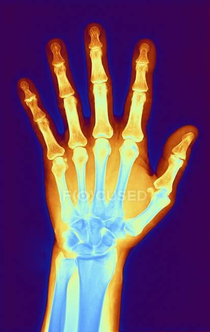 Hand eines Patienten mit Arthrose — Stockfoto