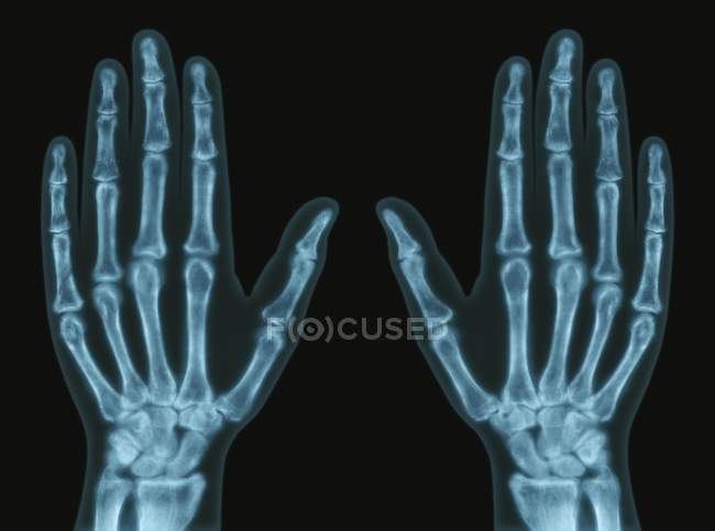 Hand Bones Anatomy X Ray Human Hand Black Background Stock