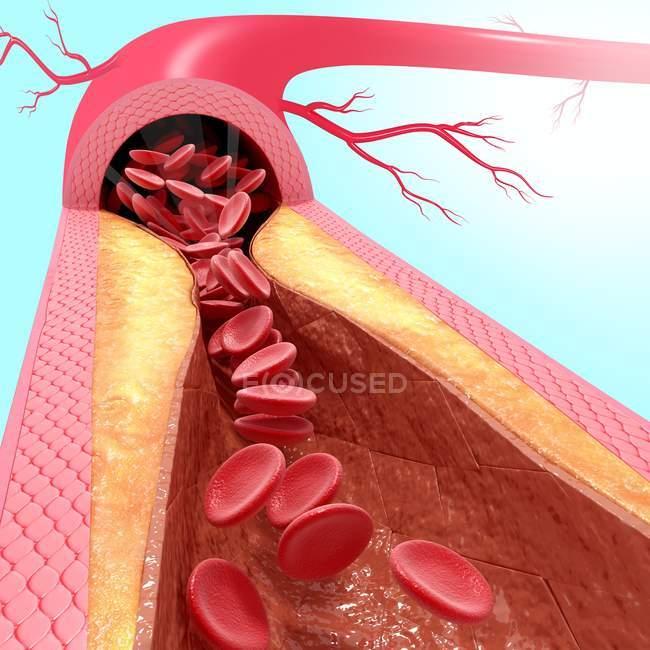 Piastra di colesterolo che porta ad aterosclerosi — Foto stock