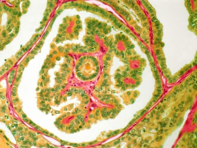 Adenocarcinoma de la glándula tiroides - foto de stock