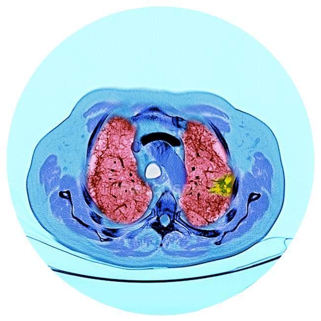 Tomografia computadorizada (TC) colorida de uma secção no peito de um doente do sexo masculino de 76 anos com um tumor maligno (canceroso) (brilhante, direito) do brônquio . — Fotografia de Stock
