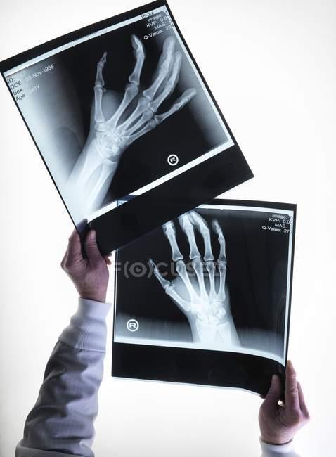 Imagem de raios-X dos ossos da mão — Fotografia de Stock