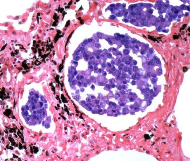 Carcinoma secundario de pulmón - foto de stock