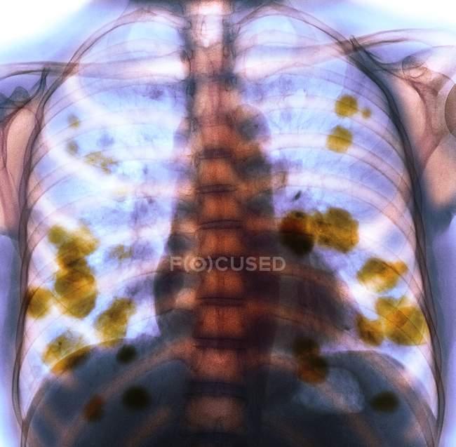 Radiografía coloreada del tórax de una paciente de 52 años con cáncer de pulmón metastásico (secundario) (amarillo ). - foto de stock