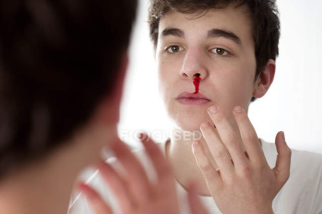 Young man with nosebleed looking in mirror. — Stock Photo