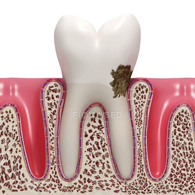 Patologia della placca dentale — Foto stock