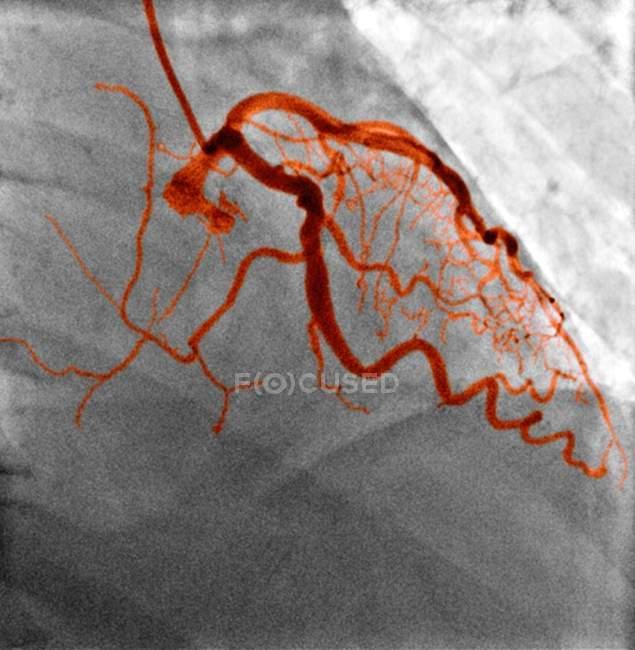 Нормальний кровоносних судин, рентген — стокове фото