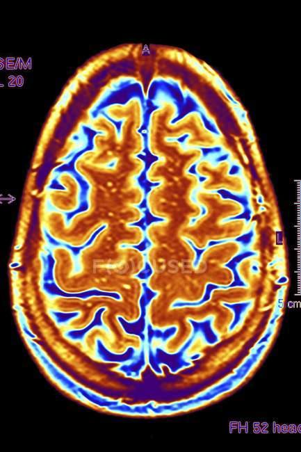 Scansione di color imaging a risonanza magnetica (Mri) di una sezione assiale attraverso un cervello sano. — Foto stock
