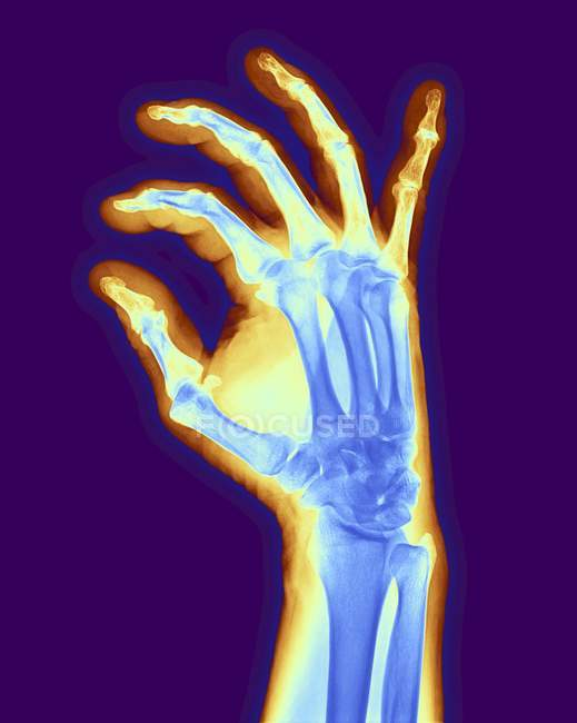Рука пациента с остеоартритом — стоковое фото