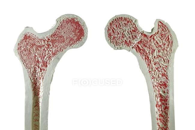 Normal et fracture de fémur — Photo de stock