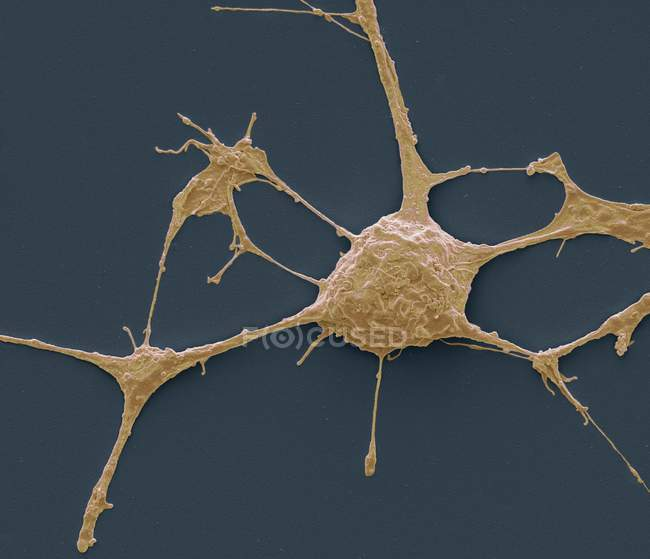 Micrografo elettronico a scansione (SEM) di un neurone PC12 in coltura . — Foto stock