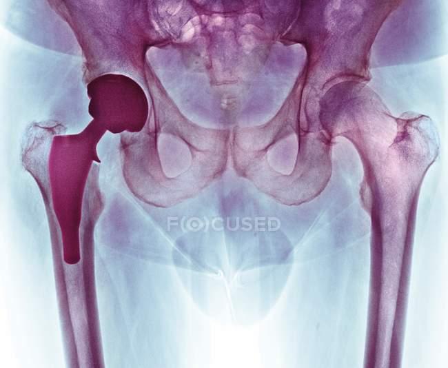 Sustitución total de cadera , - foto de stock