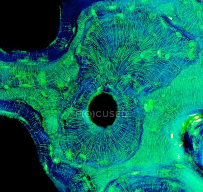Estrutura do osso compacto, micrografia de luz . — Fotografia de Stock
