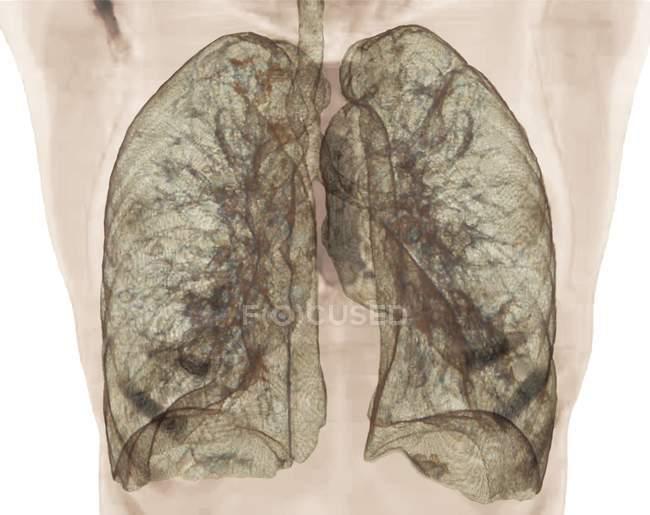 Tomografía computarizada coloreada de pulmones sanos . - foto de stock