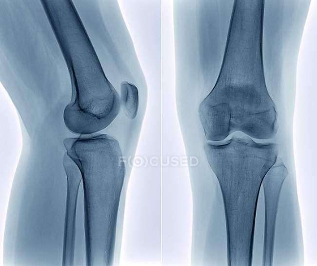 Anatomía saludable de la articulación de rodilla - foto de stock