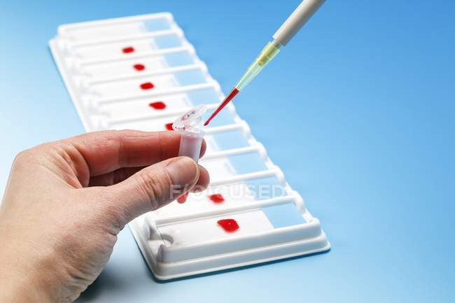 Person dropping blood sample into vial with pipette. — Stock Photo
