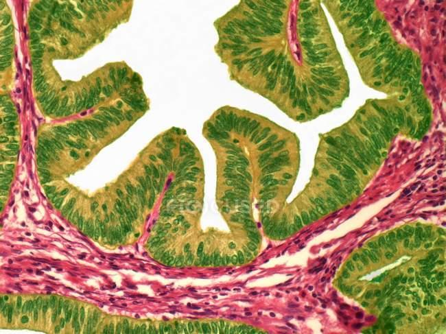 Аденокарциноми слизової оболонки матки — стокове фото