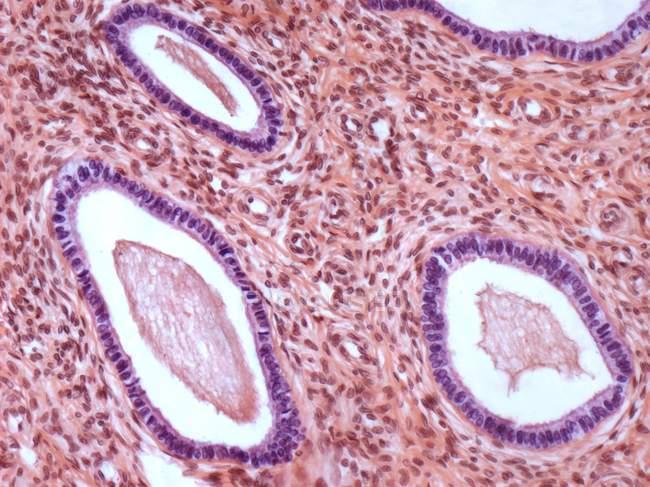 Estructura mucosa del cuello uterino - foto de stock