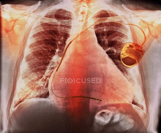 Marcapasos en cardiopatías - foto de stock