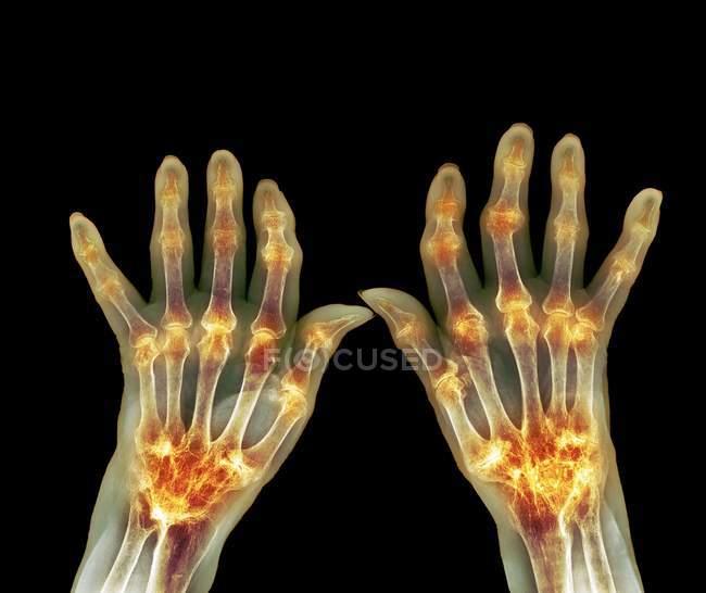 Rheumatoid arthritis of hands — Stock Photo