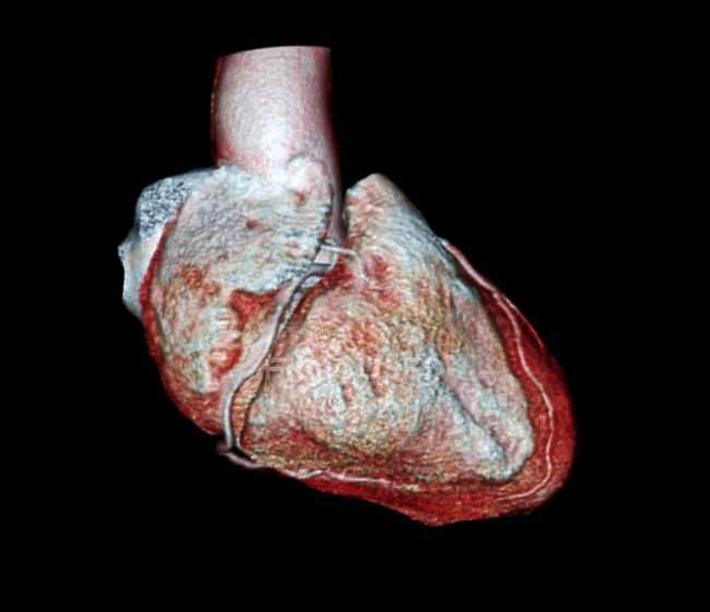 Серце 54-річний пацієнта — стокове фото