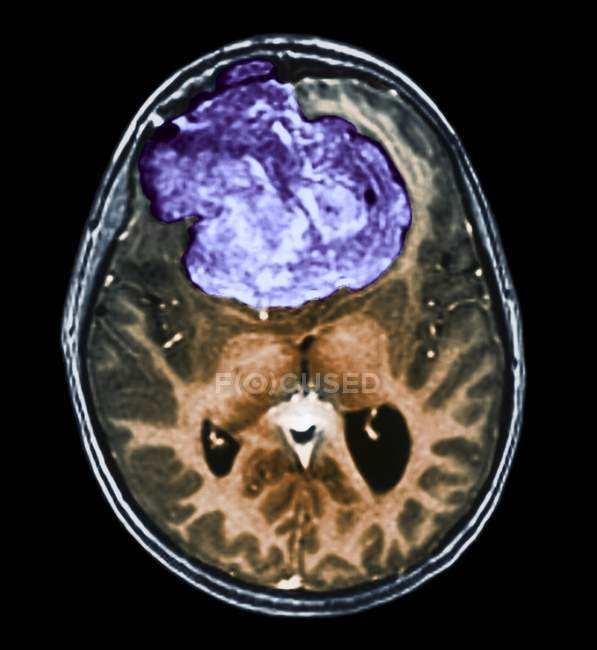 Tomografía computarizada (TC) coloreada del cerebro de un paciente de 25 años con meningioma (azul) ). - foto de stock