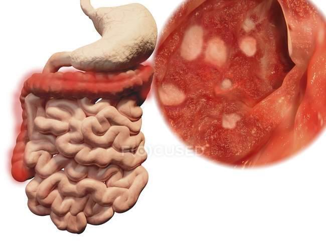 Colitis ulcerosa, ilustración por computadora . - foto de stock