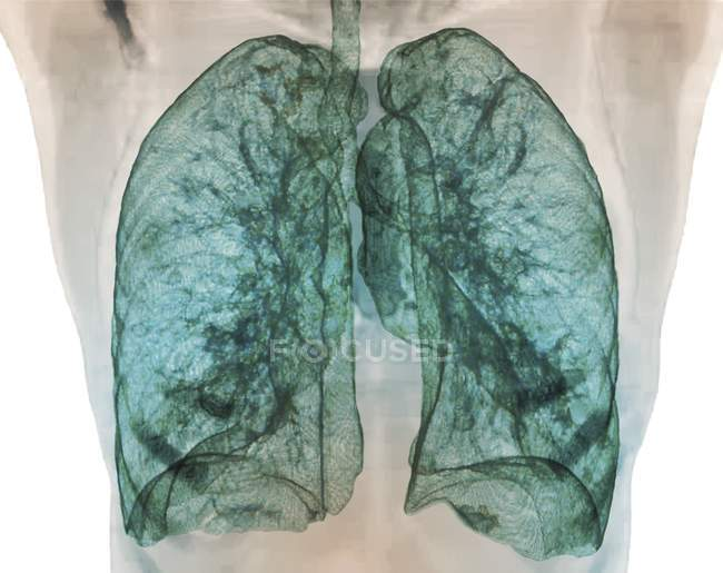 Tomodensitométrie colorée des poumons sains . — Photo de stock
