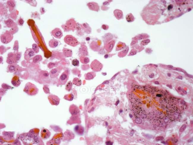 Fibras de amianto en tejido pulmonar, micrografía ligera . - foto de stock